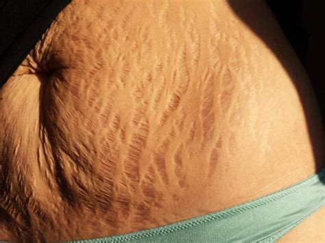 heavy pubic hair flaws and all stretch marks go viral in support of women