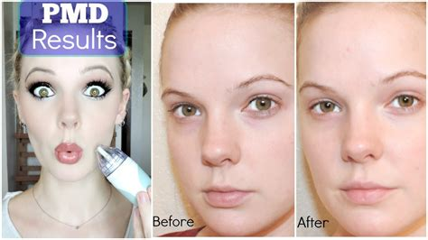 professional skincare at home pmd results review