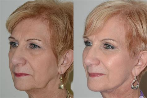 before and photos facelift before and after pictures facial plastic surgery