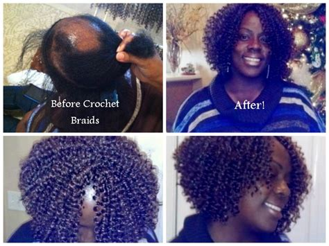 how to twist hair on alopecia 85 best images about natural hairstyles on pinterest