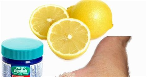 Liver Detox And Celia by Abcdiy Diy Home Solution To Scaly Cracked Heels