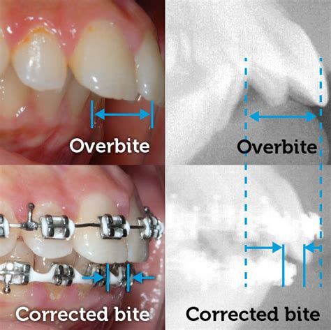 with an overbite overbite smile logic orthodontics south brunswick nj