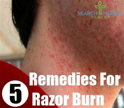 7 razor burn home remedies treatments and cures