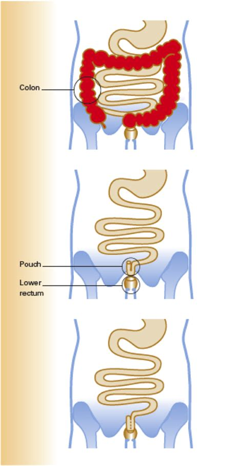 whole grains ulcerative colitis posts directposts