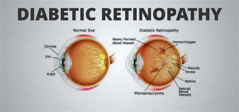 Blindness Due To Diabetes diabetes your superior eye health vision therapy center