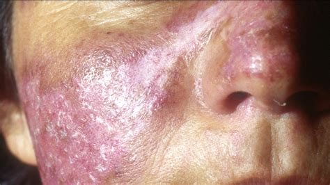what is lupus and do i it