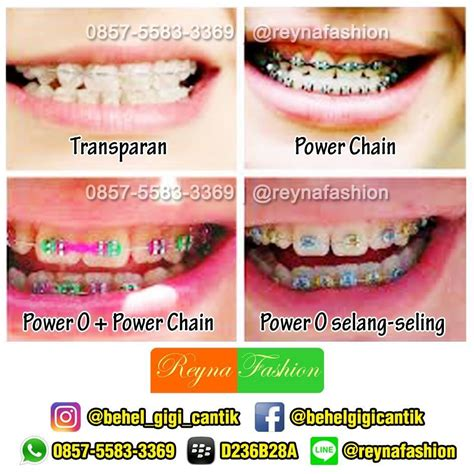 toko behel bogor teeth whitening service bogor