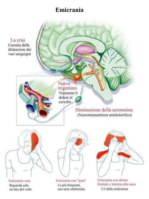 cioccolato mal di testa mal di testa continuo o frequente nausea cause rimedi