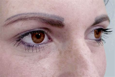 Rorec Lasting Make Up permanent make up entfernen laserpoint hannover