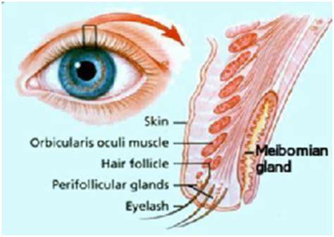tarsal cyst  symptoms treatment tarsal cyst