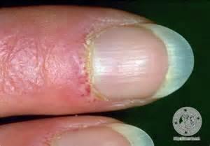 dermis dermatomyosite image