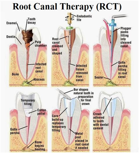 root canal diagram root canal treatment news dentagama