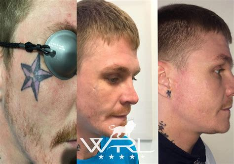 tattoo removal before and after uk removal whiteroom laser ltd