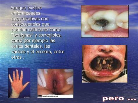 imagenes asquerosas de enfermedades enfermedades degenerativa f
