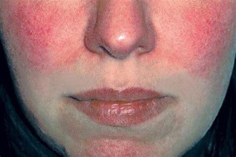acne rosacea e alimentazione rosacea dalla diagnosi alla cura malattie e disturbi