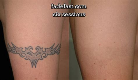 d inked laser tattoo removal nwa dealpiggy 80 laser removal or ink reduction