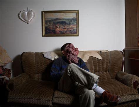 jose man with no face after surgery a menina que roubava sonhos cancer na boca