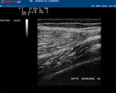 ematoma interno le lesioni muscolari di marco