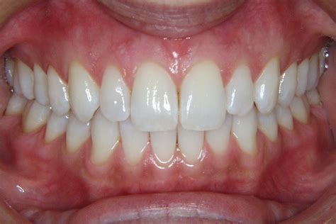 healthy gums gum lift gum reshaping boca raton cosmetic dentistry