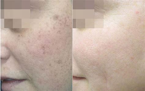 light skin rejuvenation skin rejuvenation before after photos lightrx