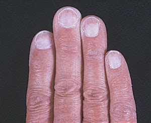 White Nail Beds by Proximal White Finger Nails Photo Quiz American Family