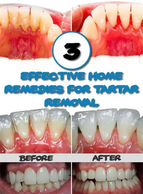 3 effective home remedies for tartar removal sunflower