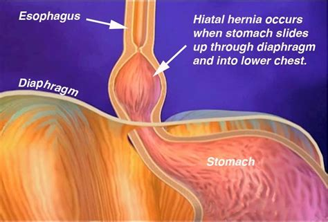 diagram of hiatal hernia the health website hiatus hernia