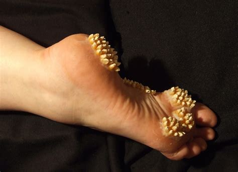 [Trigger] Corn growing on a foot. (X Post /r/) : trypophobia