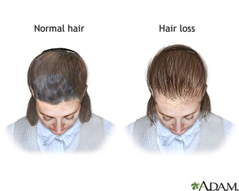 the female pattern hair loss review of pathogenesis and diagnosis female pattern baldness medlineplus medical encyclopedia