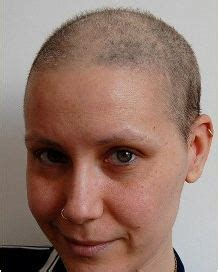week 14 hair growth after chemo hair regrowth after chemo pictures of post chemotherapy