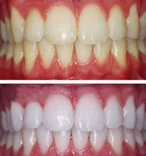 tea tree teeth whitening beatiful tree