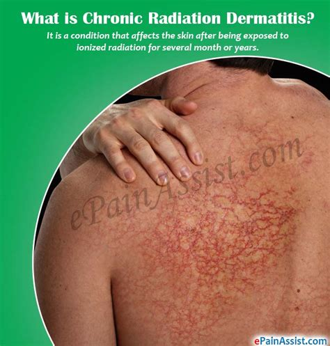 Management Of Acute Radiotherapy Induced Skin Reactions A Literature Review by Chronic Radiation Dermatitis Causes Symptoms Treatment Risk Factors Complications