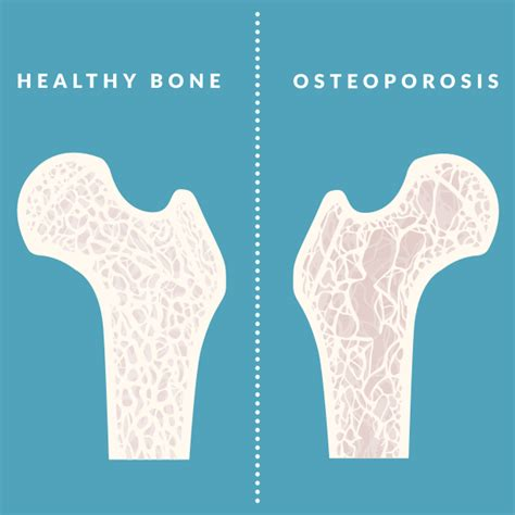 to the bone threatening illness and the search for meaning books osteoporosis images