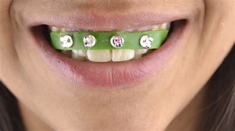 How To Make Braces With Paper - 2 easy ways to make braces wikihow