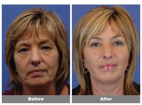 hair cut to lift face hairstyles for sagging chin to download good hairstyles