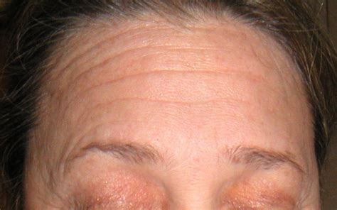 celebrities with forhead wrinkle celebrity forehead wrinkles hairstylegalleries com