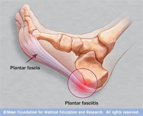 plantar fasciitis diagram free your from plantar fasciitis renew physical therapy
