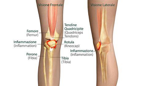 strappo interno coscia la patologia femororotulea