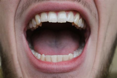 Mouth Open | open mouth images usseek com