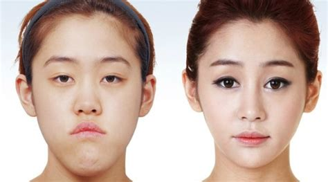 Plastik Surgery Di Korea 9 Korean Plastic Surgery Before And After Photos That Will