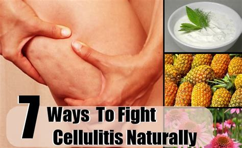 cellulite behandlung zu hause how to fight cellulitis naturally best ways to