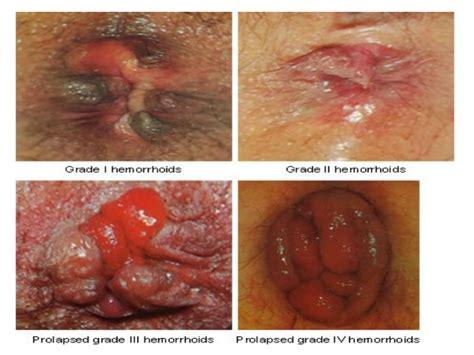 hemroids external external hemorrhoids hemorrhoids ppt video online