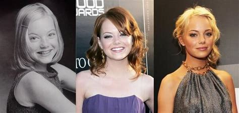 emma stone then and now then now pics on twitter quot emma stone http t co