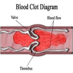 Blood Clots During Detox by Magazines And Blood On
