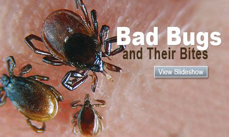 dust mites vs bed bugs dust mite bites vs bed bug bites