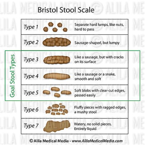 Bristol Stool Scale Type 1 by Alila Media Bristol Stool Scale