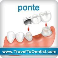 protesi mobili prezzi prezzi protesi dentarie cura della pelle