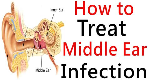 how to treat ear infection how to treat middle ear infection middle ear infection treatment and its prevention