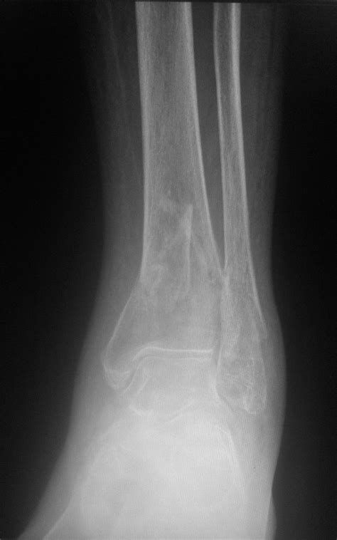Tibial Plafond by Tibial Plafond Fractures Orthobullets