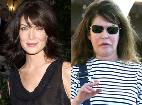top 10 celebrities who have had plastic surgery gone wrong